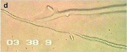 pythium-oligandrum4